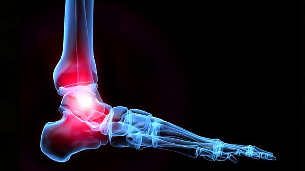 Amélioration de la mobilité des chevilles : le test de mobilité  (1)